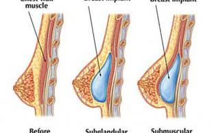 Nâng ngực nội soi là gì?